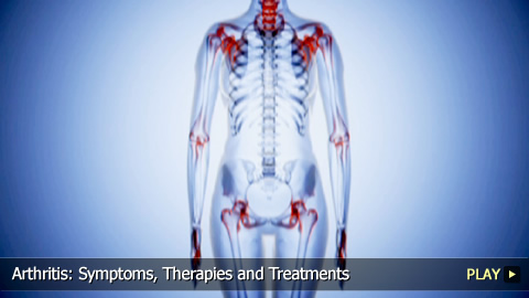 Arthritis: Symptoms, Therapies and Treatments