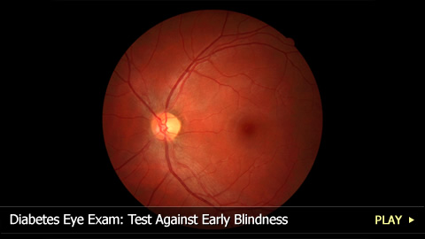 Diabetes Eye Exam: Test Against Early Blindness