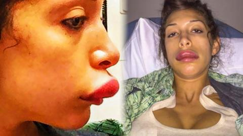 10 Worst Plastic Surgery Disasters   Creepy, weird, funky ...