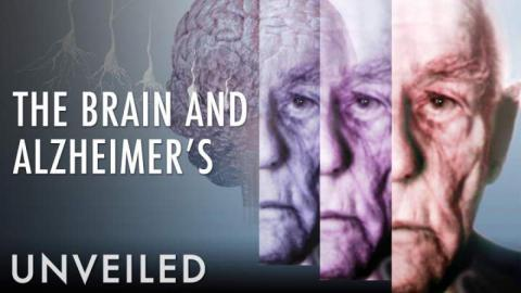 What Happens To The Brain During Alzheimer's?