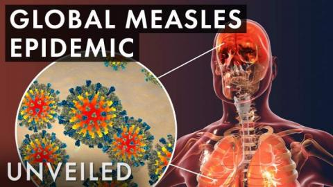 What If The Measles Outbreak Was Worldwide?